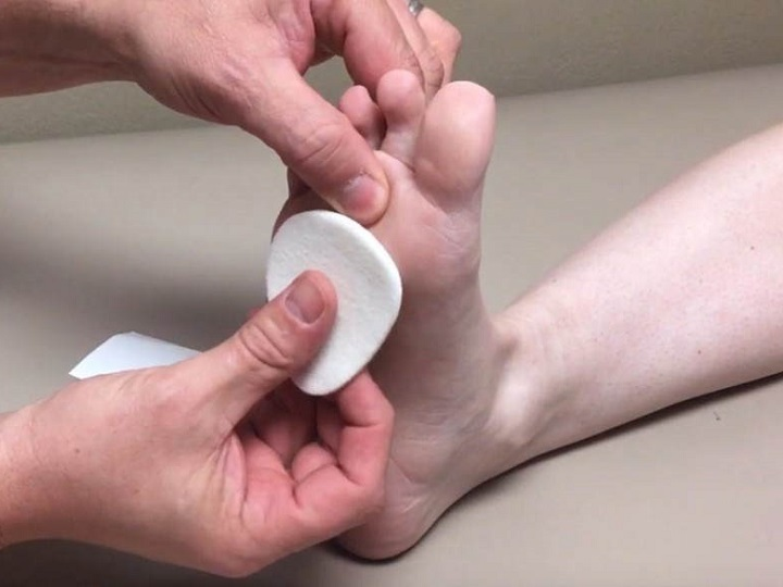 Do Metatarsal Pads Help Morton's Neuroma