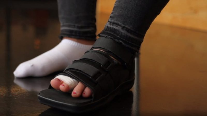 Best Shoes for a Broken Toe